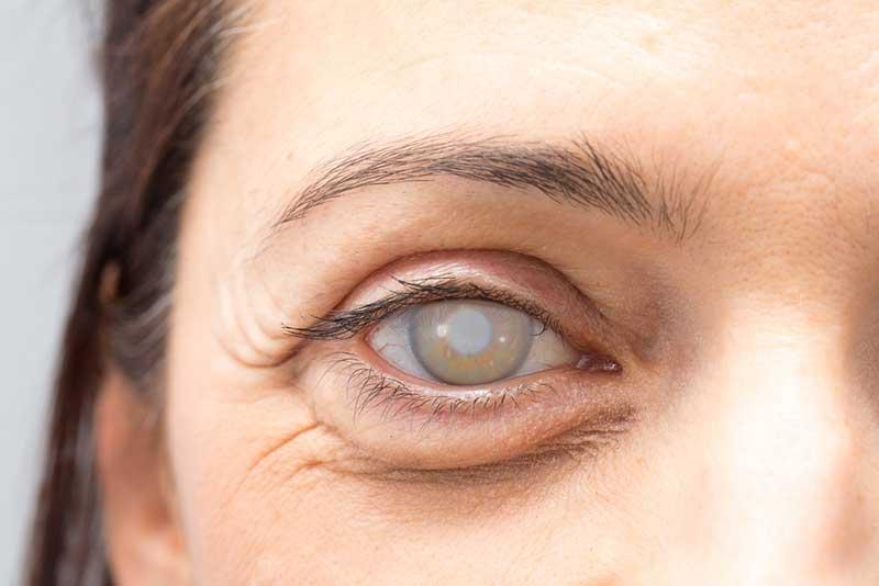 Cataracts  Milpitas, CA